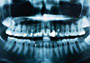 Panoramic-X-ray