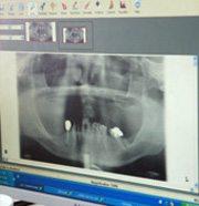 צילום שיניים רדיוגרפי