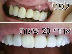 מהפכת הדיגיטל בתחום רפואת השיניים